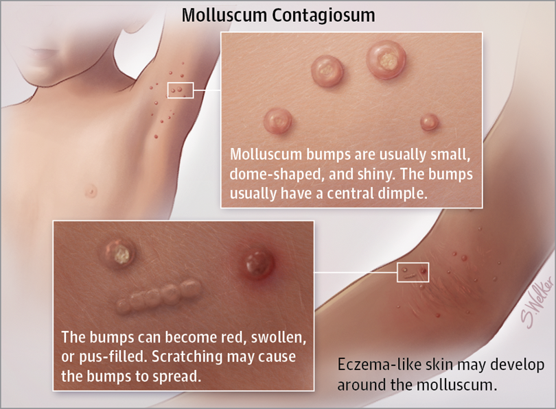 Cantharidin Treatment For Molluscum Durban Skin Doctor