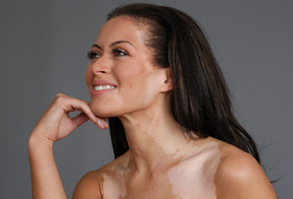 vitiligo treatments